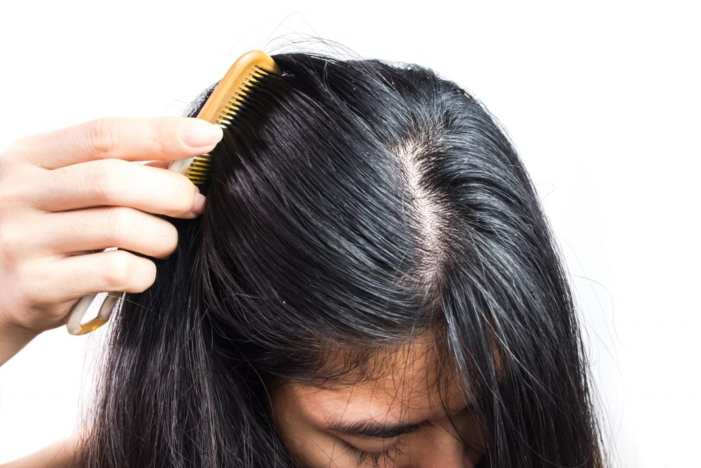yağlı saç