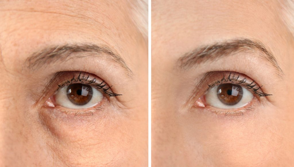 Göz Altı Kremi Nasıl Uygulanır?